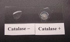 Roles and Regulations of Catalase and Catalase Positive Organisms